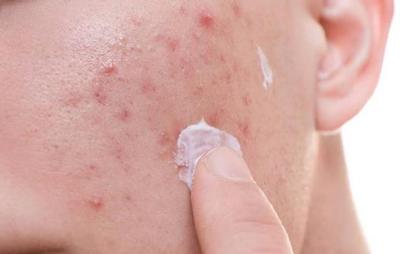 萃芙兰护肤祛痘是真的吗?